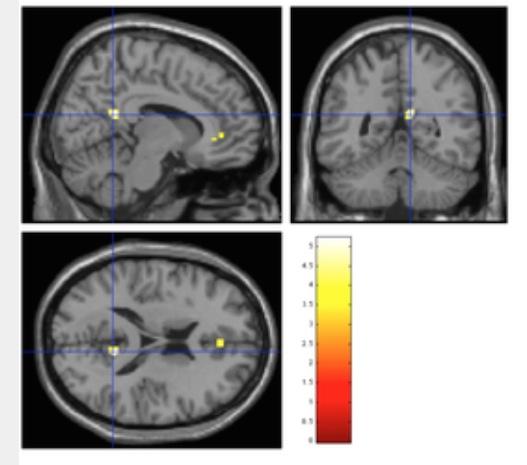 http://www.allesgelingt.de/blog/Gleichzeitiger_Medien-Konsum-Gehirn.jpg